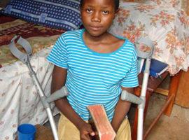 Tortured Ugandan girl regaining use of legs