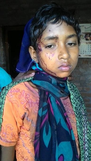 12-year-old Savitha Markhami was among those injured. (Photo: World Watch Monitor)